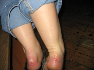Fun times: bloody feet for a week in Ireland.
